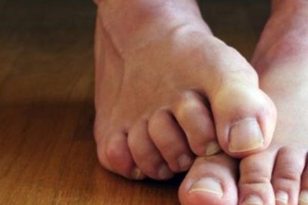 изменения в ногтях