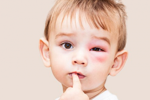 Как погода влияет на аллергиков?