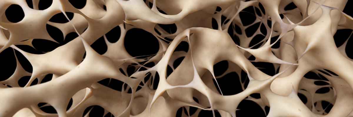 Остеопороз - Телемедсестра